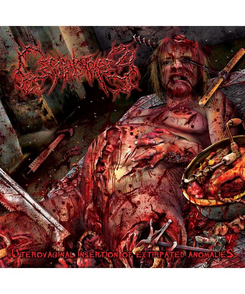 CD / DVD   CEPHALOTRIPSY / セファロトリプシー:UTREVAGINAL INSERTION OF EXTIRPATED ANOMALIES RE-LSSUE (日本盤CD) 商品画像